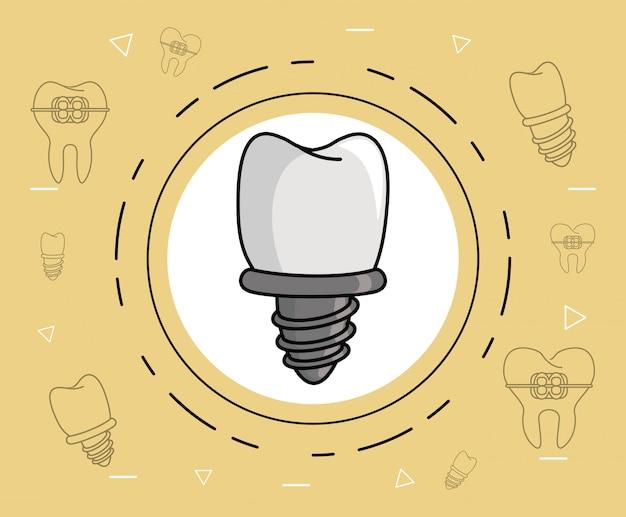 Уход за зубными имплантатами