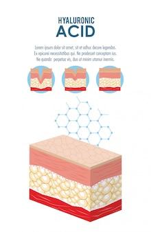 ヒアルロン酸フィラー注射インフォグラフィック