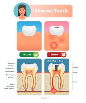 膿瘍歯のイラスト。構造とラベルの付いた医療図。