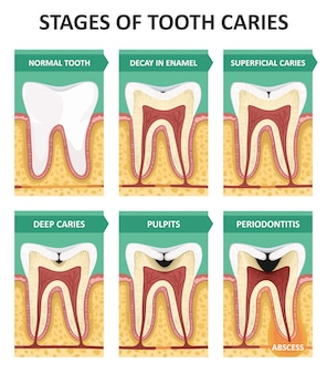 Этапы кариеса зубов