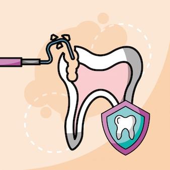 歯科用器具の歯とシールドの保護