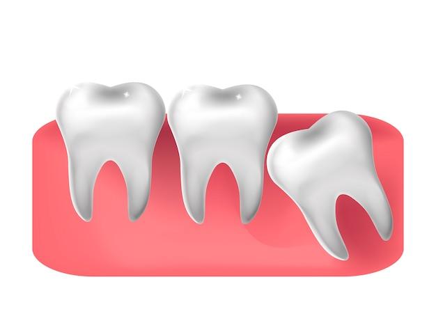 Прорезанный зуб мудрости, реалистичный стиль. стоматология, концепция извлечения зубов мудрости. иллюстрация