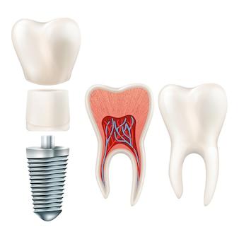 歯セット。人間の現実的な歯と歯科インプラント。