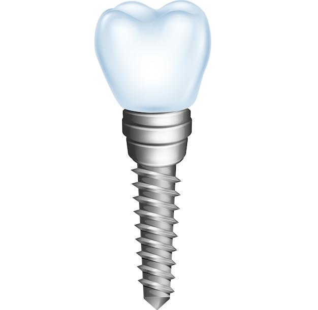 白い背景で隔離された歯科インプラント