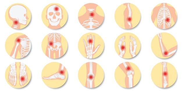 白い背景に設定された関節と骨のアイコンの病気