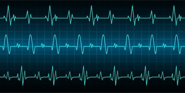Сердце бьет кардиограмму фон
