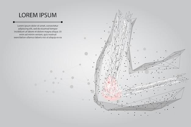 マッシュラインを抽象化し、人間の腕の関節をポインティングします。低ポリデザイン肘治療痛み治療ベクトル図