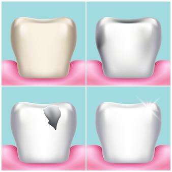 歯の問題、虫歯、歯垢や歯肉の病気、健康的な歯のイラスト。口腔科学および