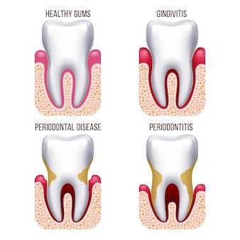 ヒトの歯茎疾患、歯肉の出血。歯疾患予防歯科、口腔ケア