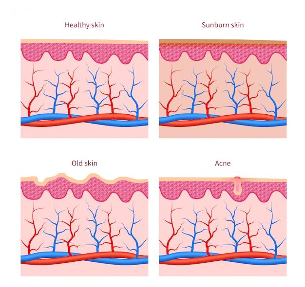 皮膚の種類健康、日焼けや古いにきびのベクトルセット