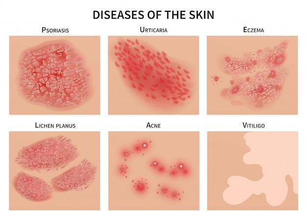 皮膚疾患。皮膚感染症、湿疹および乾癬。皮膚科の図