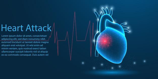 人間の心臓発作、低ポリのコンセプト。