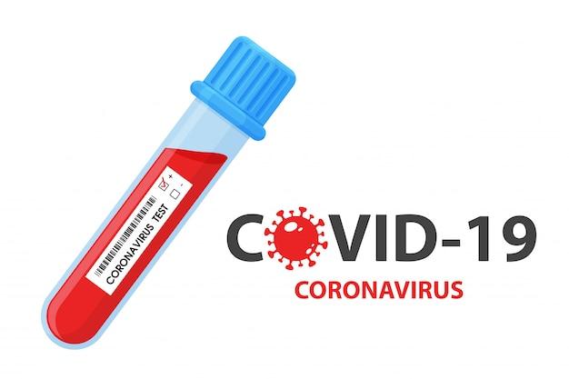 コロナウイルスに感染した中国人患者から血液サンプルを収集する試験管