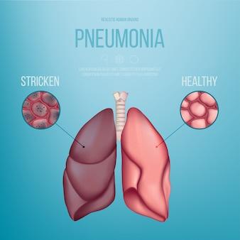 Изображение здорового легкого и легкого, пораженного пневмонией. реалистичная иллюстрация.