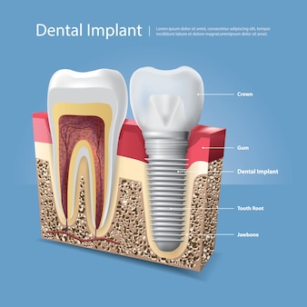 人間の歯と歯科インプラントイラスト