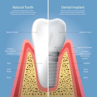 人間の歯と歯科インプラントベクトル図