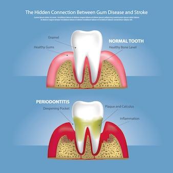 ガム疾患の人の歯の段階ベクトル図