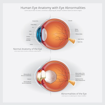 Глазная анатомия с глазными аномалиями векторная иллюстрация