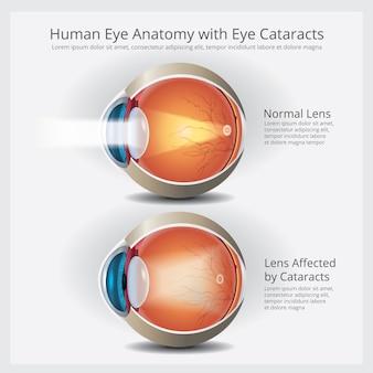 目の異常のベクトルイラストと目の解剖学