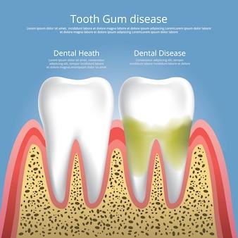 人間の歯の段階の歯周病のベクトル図