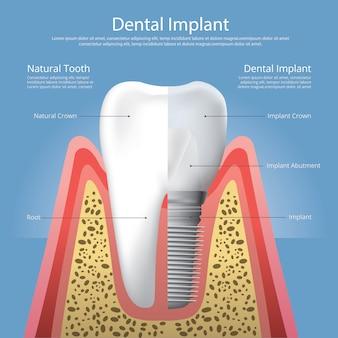 人間の歯と歯科用インプラントのベクトル図