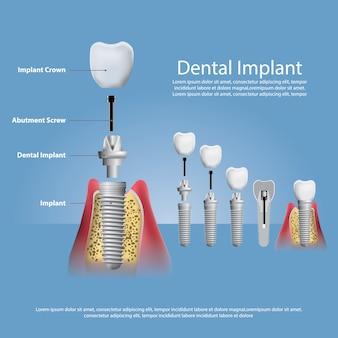 Человеческие зубы и зубной имплантат иллюстрация