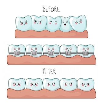 Набор зубов каваи с эмодзи, герои мультфильмов