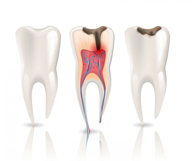 エナメル虫歯感染症と健康歯