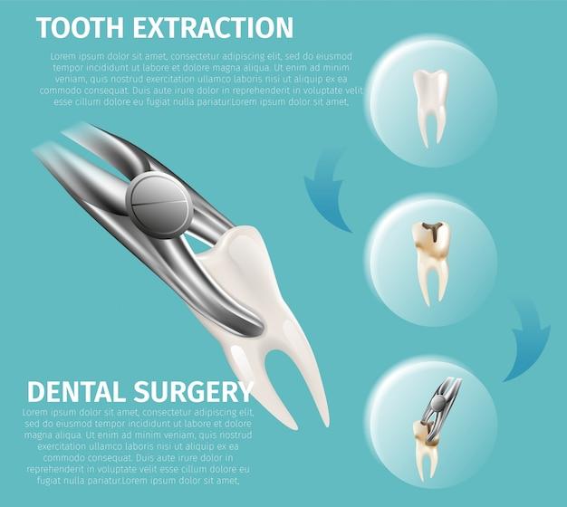 Реалистичная иллюстрация инфографики стоматологической хирургии