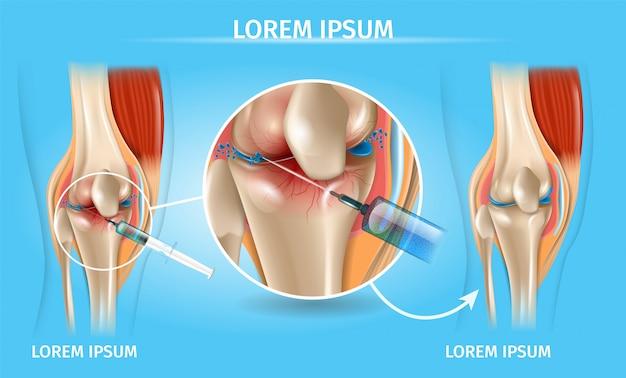 Инъекция для колена остеоартрита медицинская диаграмма