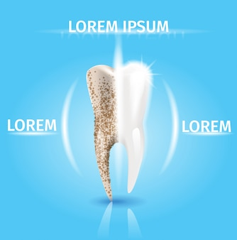 歯のクリーニングリアルなベクトル歯科コンセプト