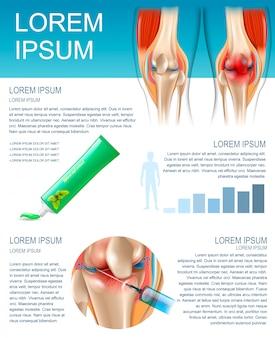 Баннер инфографика методы лечения боли в колене