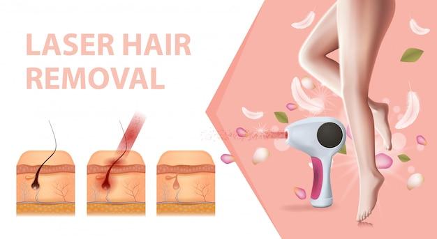 Эпилятор, женские ноги и инфографика удаления волос