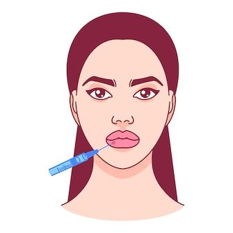 唇にボトックス注射。形成外科。ベクトルイラスト。