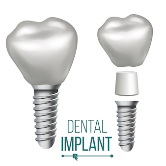 歯科インプラントの図
