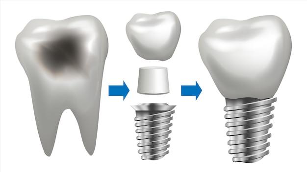 Иллюстрация зубного имплантата