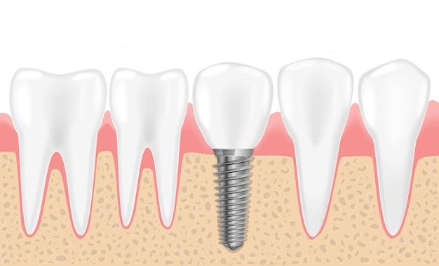 健康的なリアルな歯と歯科用インプラント