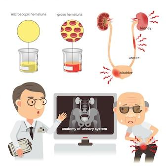 血尿尿路感染症のイラスト