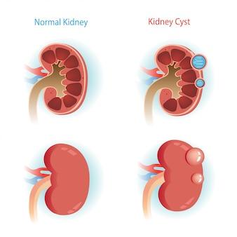 腎臓嚢胞ステップ図。