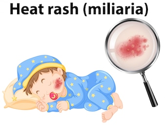 A baby with heat rash