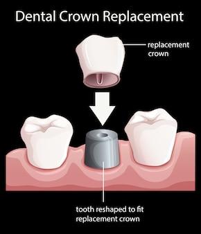 Замена зубной коронки