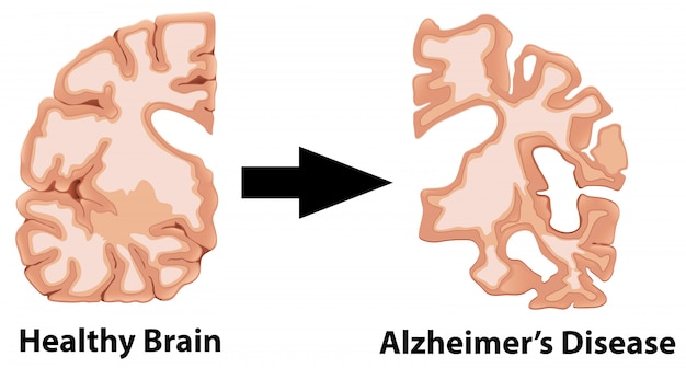 脳の人体解剖