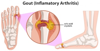 A Human Anatomy of Gout