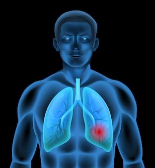 폐 질환의 인체 해부학