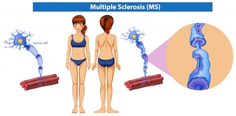 A Human Anatomy of Multiple Sclerosis