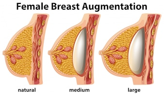 A Set of Female Breast Augmentation