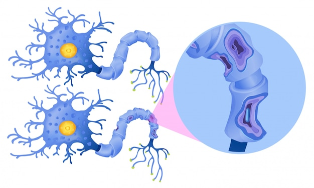 인간 신경 세포의 집합
