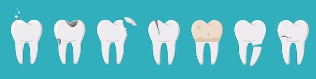 さまざまな怪我をした歯のセット