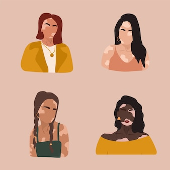 Абстрактные силуэты женщин с витилиго разных национальностей.