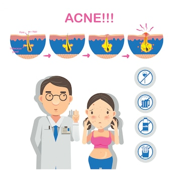Acne formation infographics